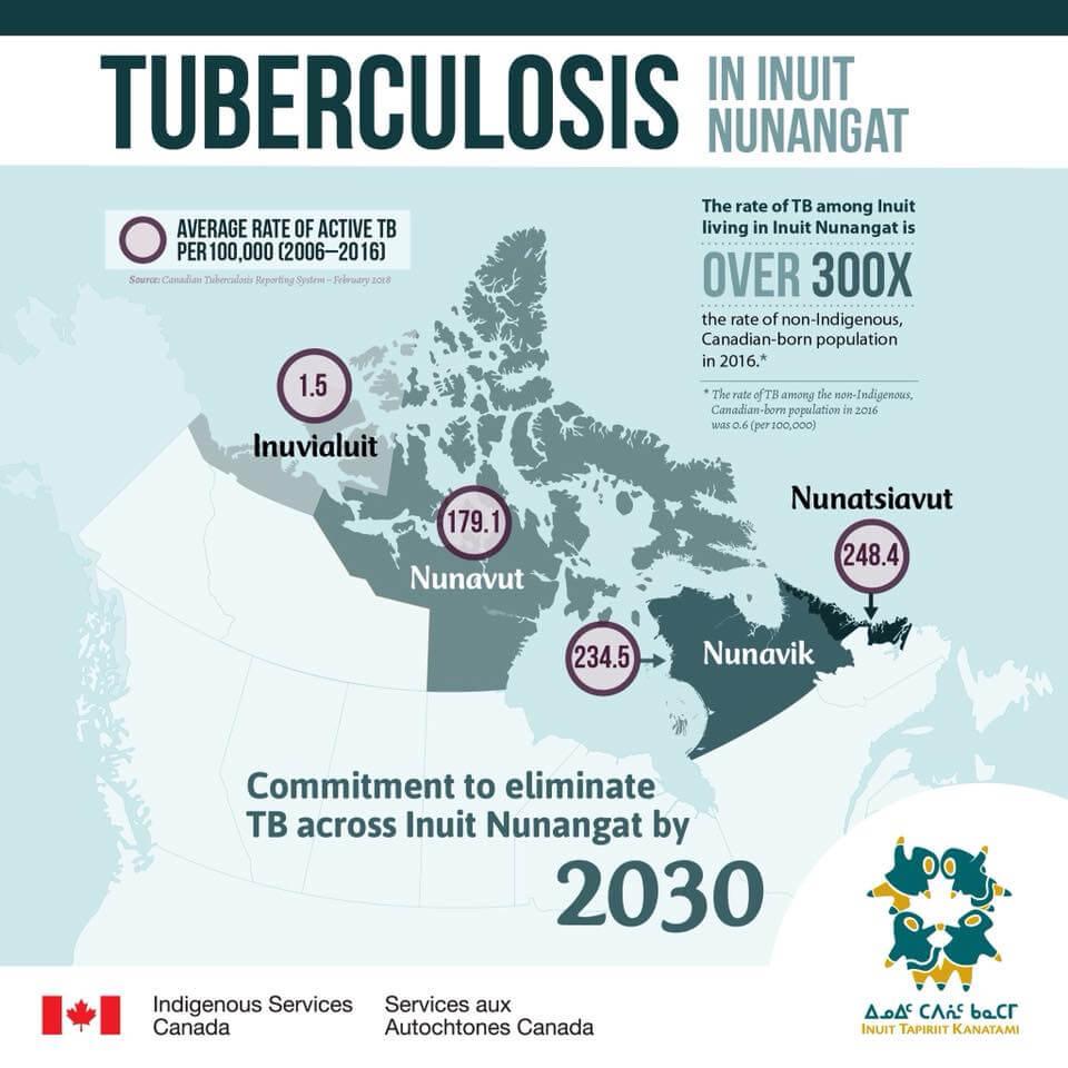 Ending Tuberculosis – Backgrounder